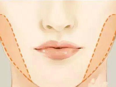 脸大打瘦脸针真的有效果吗