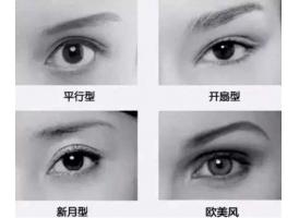 双眼皮的类型有几种,适合什么人群