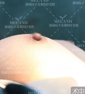 假体丰胸+济南历下美莱胸部案例
