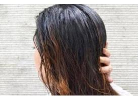 女生头发很油腻,脱发严重该怎么办