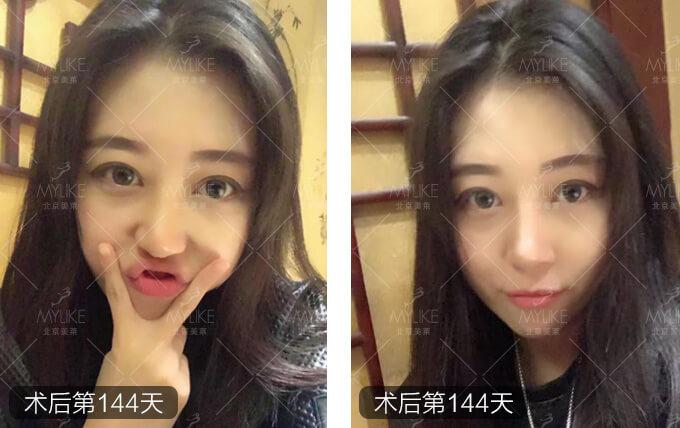 郑佳琪达拉斯综合隆鼻+北京美莱鼻整形案例