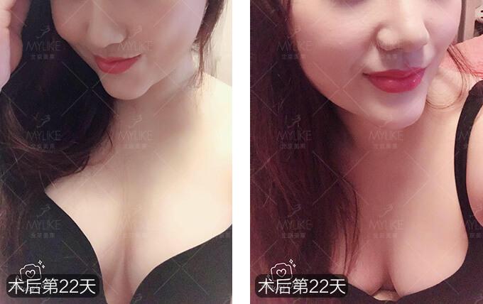 唐雪深V动感丰胸+北京美莱胸部案例