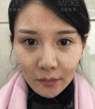 美莱自体活力面雕+北京美莱吸脂案例