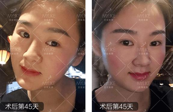 半长久纹眉+北京美莱皮肤案例
