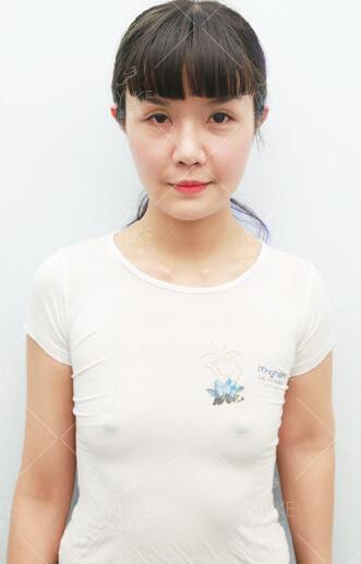 源源baby综合美胸整形+北京美莱胸部案例