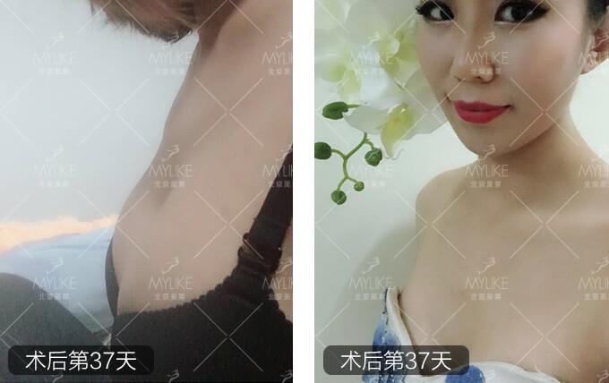 安颖书深V动感丰胸+北京美莱胸部案例