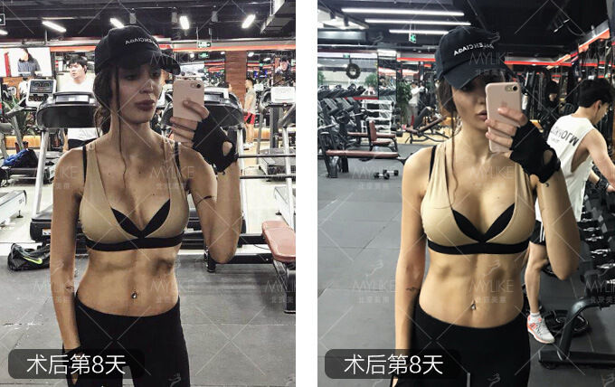 熊猫美眉动感丰胸整形+北京美莱胸部案例