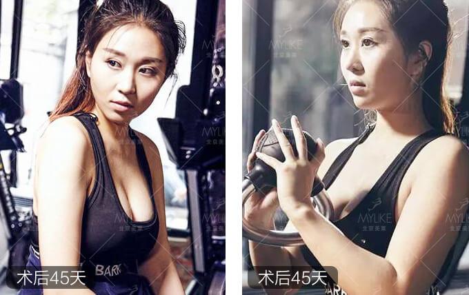朵朵自体脂肪隆胸整形+北京美莱胸部案例