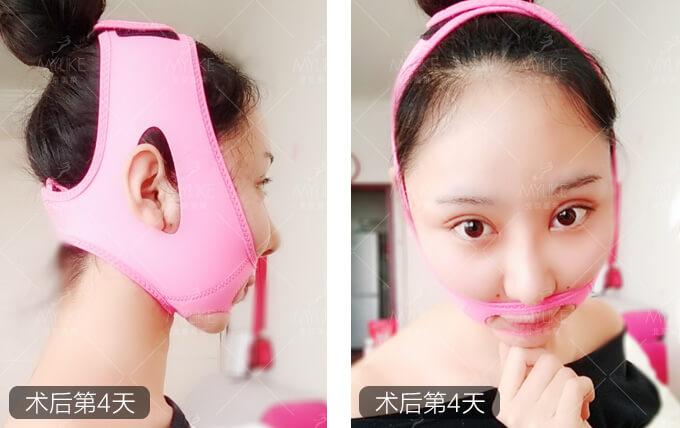 吕思佳光纤吸脂手术+北京美莱吸脂减肥案例