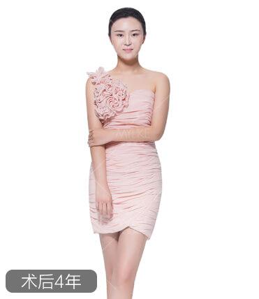 张梦腿部吸脂减肥+北京美莱吸脂瘦腿案例