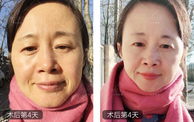 丰收季节蜂巢皮秒祛斑+北京美莱祛斑案例