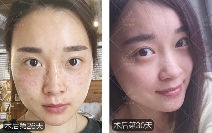 杨梅激光祛斑美肤+北京美莱皮秒祛斑案例