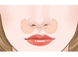 鼻翼缩小手术大概需要多少钱