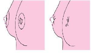 乳头内陷矫正术后需要注意哪些