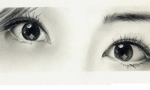 美莱做韩式双眼皮大概多少钱