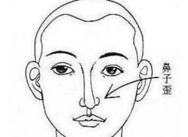 上海做歪鼻子矫正手术需要多少钱
