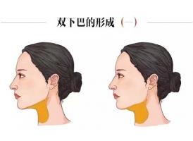 双下巴越来越严重了,怎么才能快速消除