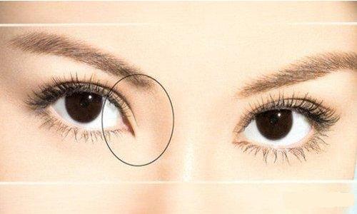 美莱韩式开眼角整形的效果如何