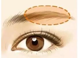 美莱注射玻尿酸丰眉弓的效果怎么样