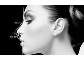 隆鼻方法有几种,哪种隆鼻效果好