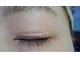 单眼皮怎么才能自然的变成双眼皮