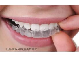 牙齿矫正选择哪种方法会更好