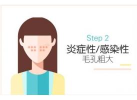 脸部毛孔粗大如何才能改善