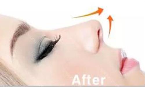 鼻孔缩小手术是怎么做的,安全吗