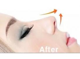 注射隆鼻和假体隆鼻整形有什么区别