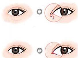 上海做开眼角手术会不会伤害眼睛啊
