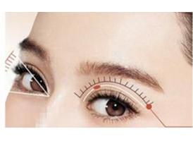 做了开眼角手术后还能戴隐形眼镜吗