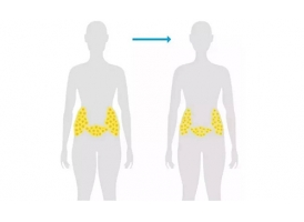 美莱多维立体吸脂减肥效果怎么样