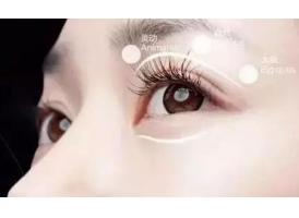 上海做双眼皮手术多久恢复自然