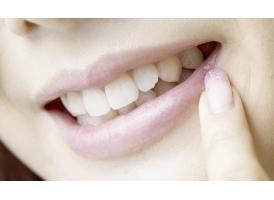 上海做成人牙齿矫正价格需要多少钱