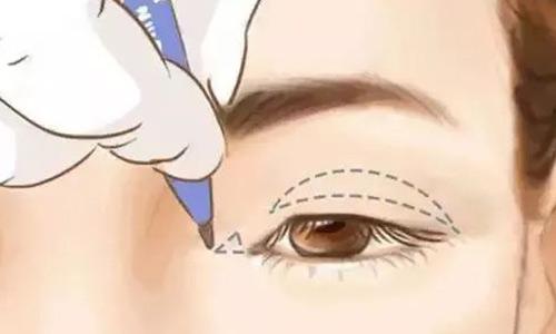 那么上海做开眼角手术会不会出现后遗症