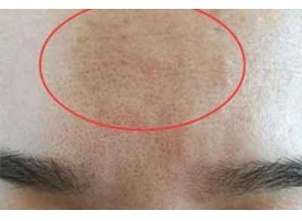 上海美莱激光收缩毛孔美白嫩肤效果好吗