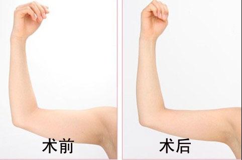 上海做胳膊吸脂减肥手术费用是多少呢