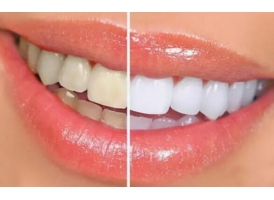 牙齿冷光美白的特点都有哪些呢,哪些人适合做