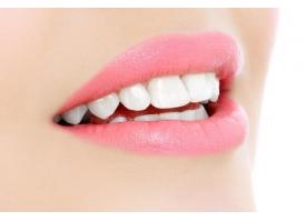 上海做激光美白牙齿能保持多久,效果好不好