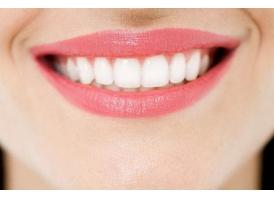 激光美白牙齿要多少钱,优势都有哪些