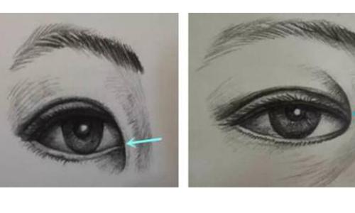 做开眼角手术是不是越大越好看