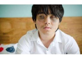在上海做去黑眼圈手术费用是多少钱啊