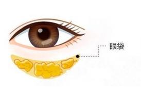 上海祛眼袋手术的价格大概是多少