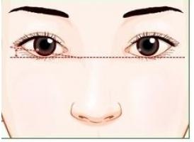 上海整形医院做双眼皮一般多少钱