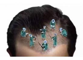 美莱头发种植效果怎么样