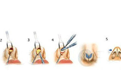 鼻翼缩小鼻翼整形手术的价格是多少钱