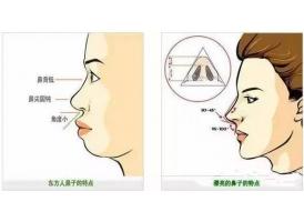 隆鼻用什么牌子假体最好不会有排异?