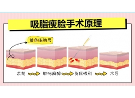 吸脂瘦脸失败修复后能保持多久?
