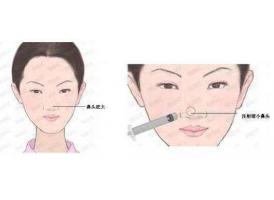 上海鼻头缩小术能维持多久,会不会出现反弹现象?