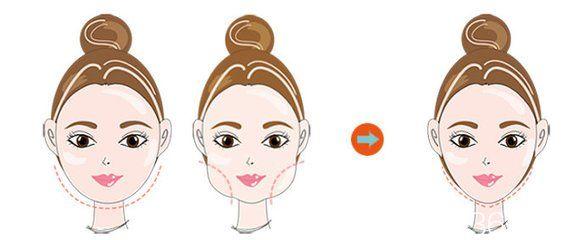 吸脂减肥瘦脸失败修复后能保持多久时间?